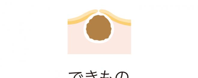 dekimono