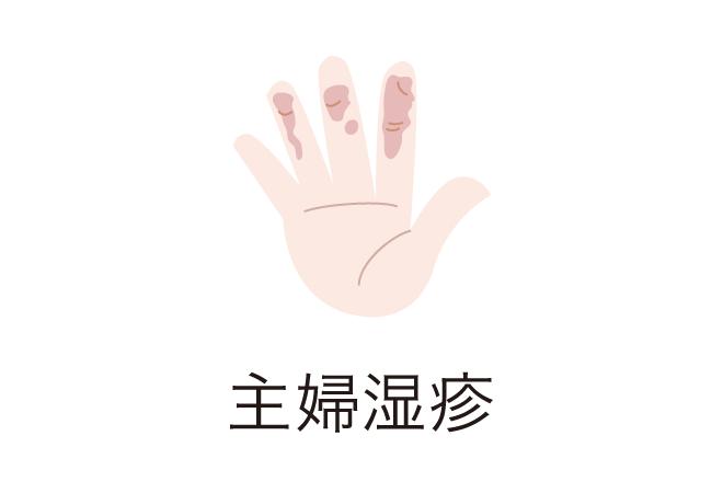 syuhu_shissin