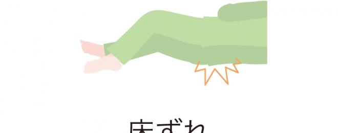 tokozure